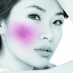 Dermal filler treatment for atrophic acne scarring