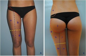 Figure 1 It is important to identify some landmarks in order to analyse the areas to treat. (left) Anterior view: red line=inguinal ligament; blue line=line from mid-inguinal ligament to knee; yellow line=anterior mid-thigh line. Area a=superoexternal thigh; area b=superointernal thigh; area c=inferoexternal thigh (external knee area); area d=inferointernal thigh (internal knee area). (right) Posterior view: red line=contour of buttock; orange line=contour of hip; green line=contour of trochanter; blue line=line from buttock fold to popliteal; yellow line=posterior mid-thigh line. Area e=hip adipocity area; area f=buttock area (muscle area); area g=trochanter adipocity area; area h=external superior thigh; area i=internal superior thigh; area m=inferior external thigh (external popliteal area); area n=inferointernal thigh (interior popliteal area)