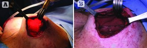 Figure 2 (A)Intraoperative, the pectoral muscle has retracted superiorly, the skin flap is thin. (B) Intraoperative, after scoring the capsule, a TIGR® mesh scaffold is placed in the pocket