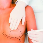 Correcting breast implant complications using TIGR® long-term synthetic mesh