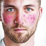 Rosacea: the strawberry fields of dermatology