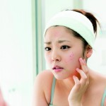 Acne in adult women: more common and more frustrating