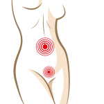 Hysterectomy can be safely combined with cosmetic surgery for 'hanging abdomen'