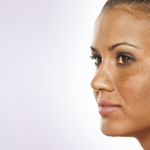 Melasma aetiology and treatment review