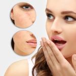 New survey reports on acne, social media behavior and teenagers' self-esteem