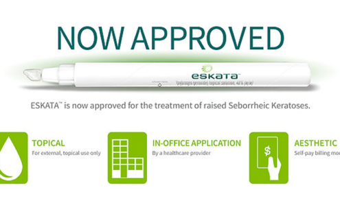 FDA approves ESKATA (hydrogen peroxide) topical solution