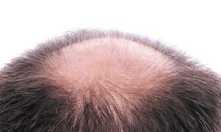 Soft Hair Surgery