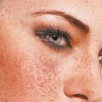 Treating Melasma Effectively Using a Controlled, Individual Bleach-Peel