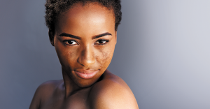 Cysteamine for Treating Hyperpigmentation