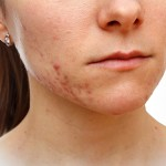 Fractional RF with Microneedling totreat acne and acne scars