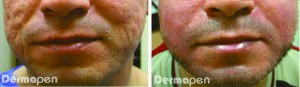Figure 1 (left) Before and (right) after six Dermapen treatments spaced 6 weeks apart