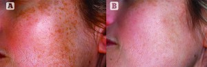 Figure 1 Phototype III, 39-year-old female patient with melasma that manifests as small spots all over the cheeks (A), and which was resistant to topical depigmenting treatment. Alternative treatment was performed using FT pulsed light with 520nm filter, 14J energy and 2-pulses emission with Ton: 5, and repeated twice with a 1-month interval (B). Maintenance treatment comprises one session during winter to correct summer damage