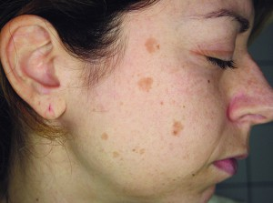 Figure 1 Pigmented blotches on the right side of the face