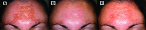 Figure 2 Phototype III, 27-year-old female patient with a 3-year evolution of melasma (A), which was resistant to topical treatments. Alternative treatment was performed using FT pulsed light with 520nm filter, 14.5J energy and 2-pulses emission with Ton: 4 and 5. Good results were achieved after 6 days of treatment (B). Partial repigmentation can be seen after 30days (C). The patient was satisfied and two additional sessions have been scheduled to reduce pigmentation