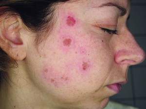 Figure 2 Typical erythema immediately after a session of Q-switched Nd:YAG laser (Duolite QS; DEKA Laser, Florence, Italy)