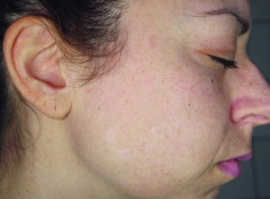 Figure 3 The disappearance of the pigmented lesions