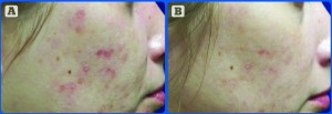 Figure 1 (A) Before treatment and (B) 20 days after one treatment with the Eclipse MicroPen. (Courtesy of Jody Comstock, MD)