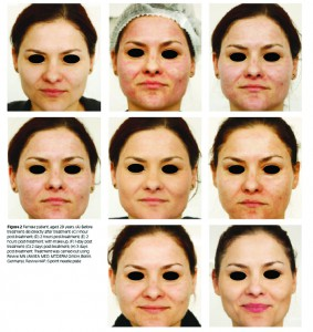 Figure 2 Female patient, aged 28 years. (A) Before treatment; (B) directly after treatment; (C) 1-hour post-treatment; (D) 2 hours post-treatment; (E) 2 hours post-treatment, with make-up; (F) 1-day post treatment; (G) 2 days post-treatment; (H) 3 days post-treatment. Treatment was carried out using Revive mn (amiea med, MT.DERM GmbH, Berlin, Germany), Revive-HAP, 6-point needle plate