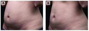 Figure 2 Treatment with Liposonix (A) before and (B) 12 weeks post-treatment, showing a 4.05cm reduction (Images courtesy Solta Medical Aesthetic Center)