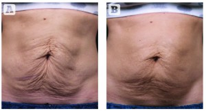 Figure 3 Treatment with Thermage (A) before and (B) 3 months post-treatment. (Images courtesy of Solta Medical Aesthetic Center)