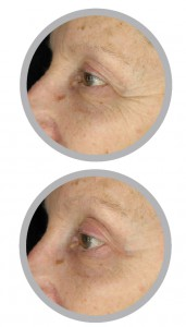 Before (top) and after (bottom) treatment with the EVENSWISS Rejuvenating Eye Complex