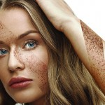 Melasma: the most common pigmentary disorder