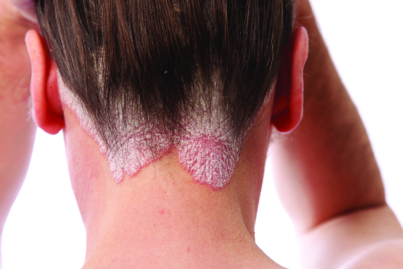 Spanish Registry of Systemic Treatments in Psoriasis (Biobadaderm) 2