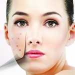 Treating acne vulgaris