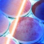 Effect of laser radiation on MMP gene expression in keratinocytes