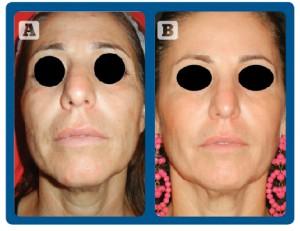 Figure 2 (A) before and (B) after 3 treatments with D-Glow