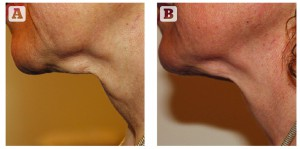 Figure 2 A) before and B) after 6 treatments to the neck with Venus Legacy™