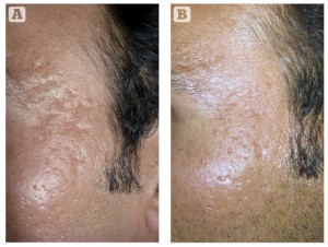 Figure 1 (A) Rolling acne scars on the forehead, and (B) excellent response after four sessions of microneedling