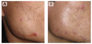 Figure 2 (A) Rolling acne scars on cheek, and (B) reduction in scars after 3 sessions of microneedling