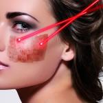 Treating post-inflammatory hyperpigmentation