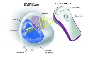 AeroForm™ Tissue Expander (AirXpanders Inc, Palo Alto, CA)