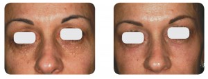 (Left) Baseline: A 37-year old female patient, skin type III. Presents syringomas plus moderate skin laxity of the lower eyelids. (Right) Postoperative Results - 6 months post one session. Combination of SurgiTouch™/AcuScan120™