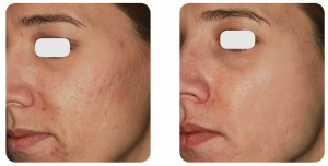 (Left) Baseline: A 27-year old female patient, skin type IIIa. Presents mixed acne scars mostly on the cheeks. (Right) Postoperative Results: 6 months post one session.