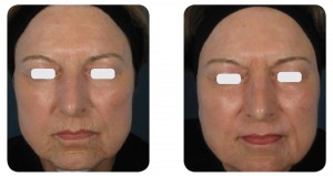 (Left) Baseline: A 52-year old female patient, skin type II. Presents mild to moderate photo aging signs on the full face, with marked peri-oral rhytids. (Right) Postoperative Results: 6 months post one session. Combo mode using the AcuScan120™.