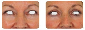 (Left) Baseline: A 49-year old female patient, skin type III. Presents marked symmetric and bilateral dermatochalasia on the upper lids. Moderate festooning was noted of the lower eyelids with mild skin laxity. (Right) Postoperative Results: 3 months post one session. The entire ellipse of skin was elevated and incised with laser. A thin strip of orbicularis oculi muscle was excised in order to expose the orbital septum. The defect in the orbital septum was identified and herniated orbital fat was exposed. The festooning fat pads in the medial lower lid were exposed through a conjunctival approach and excised with laser, after which the stalk was meticulously cauterized with laser in a defocused mode.