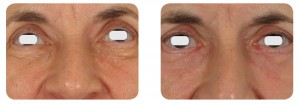 (Left) Baseline: A 64-year old female patient, skin type II. Presents dermatochalsia and extensive laxity of the lower lid in addition to syringomas on the lower lid, extending from the tear trough area to the lid margin. (Right) Postoperative Results: 8 weeks post one session. A transcutaneous skin pinch was planned to excise the excess skin, along with a concurrent C02 ablative laser resurfacing of each syringoma. A linear skin flap was oriented and raised along the subciliary line, approximately 4 mm from the lid margin. Approximately 2.5 mm of skin overlying the muscle was excised. The flap was closed with a subcuticular running non-absorbable suture. Following, syringoma lesions were treated as described in the Syringoma section.