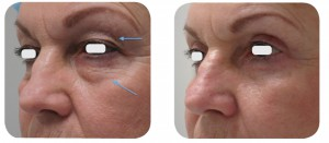 (Left) Baseline: A 61-year old female patient, skin type III. Presents symmetric and bilateral dermatochalasia on the upper lids. Pronounced static creases and lines on the lower lids, extending into the latera canthal area. (Right) Postoperative Results: 6 months post one session. The entire ellipse of skin was elevated and incised with laser. A thin strip of orbicularis oculi muscle was excised in order to expose the orbital septum. The defect in the orbital septum was identified, and herniated orbital fat was exposed. The abnormally protruding positions in the medial with laser and the stalk meticulously cauterized with laser.  Afterwards, a single pass of the AcuPulse™ AcuScan120™ in Combo mode was used to resurface the lower lid complex.
