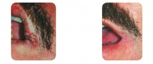 (Left) Baseline: A 35-year old male patient, skin type II. Presents verruca on the lip. (Right) Postoperative Results: 3 months post one session.