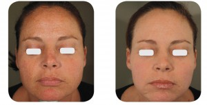 (Left) Baseline: 41-year old female patient, skin type II-III. Presents moderate photoaging, on the full face, with mild peri-oral rhytids. (Right) Postoperative Results: 4 months post one session of IPL and AcuPulse™ (M22™ IPL followed by AcuPulse™ Combo™ mode, using the AcuScan120™)