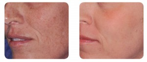 (Left) Baseline: 36-year old female patient, skin type II. Presents dyschromia, elastosis and rhytids. (Right) Postoperative Results - 3 months post one session with IPL and AcuPulse™ (M22TM IPL followed by AcuPulseTM FeatherTouchTM mode, using the 200 mm grey handpiece with the SurgiTouch™ scanner, 24 W).