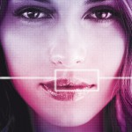 Surgical correction of  semi-permanent lip filler nodules