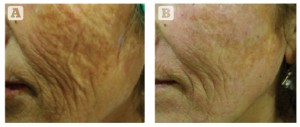 Figure 2 Severe photodamage and laxity in a 65-year-old Turkish female, Fitzpatrick skin type III. (A) Baseline findings. (B) 4 months after the final treatment session. Three MFR treatment sessions were given, 2 weeks apart, and three passes per session.