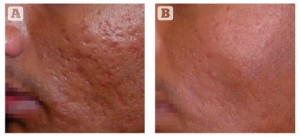 Figure 3 Acne scarring (rolling and box car type) on the cheek of a 37-year-old Indian male, Fitzpatrick skin type IV. (A) Baseline findings. (B) 1 month after a single MFR session, three passes (two passes over the whole face and one further pass over the scars).