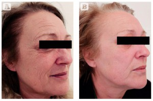 Figure 4 Photoageing of the face and neck in a 55-year-old Italian female, skin type II. (A) Baseline findings. (B) Excellent results 3 months after the second MFR treatment session, two passes per session, 2 weeks apart.
