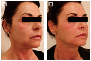 Figure 5 Photoageing of the face, neck, and décolleté in a 51-year-old Italian female, skin tye II-III. (A) Baseline findings. (B) Excellent results 3 months after the second MFR treatment session, two passes per session, 2 weeks apart.