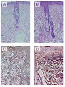 Figure 6 Histologic assessments of changes in collagen and elastin 2 weeks after eight sessions of 830 nm LED-LLLT monotherapy over 4 weeks. (A) Haematoxylin and eosin staining showing the condition of collagen at baseline. (B) 2 weeks post final treatment. A significant increase is seen in the amount and quality of collagen, with a very well-oriented Grenz layer, a thicker and more cellular epidermis, and well-organised stratum corneum. (C) Verhoeff-van Giesen stain showing the condition of the elastic fibres at baseline. (D) Findings 2 weeks after the final treatment. A significant increase in the amount and quality of elastic fibres is noted at all depths in the dermis, a thicker epidermis and well-formed stratum corneum. All at original magnification X 200.